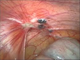 endometriozis-nedir
