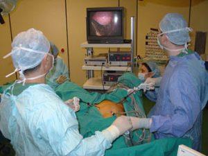 laparoskopi01