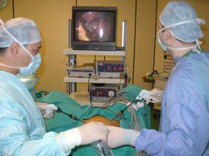 laparoskopi02