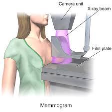 mamografi-ne-zaman-ve-ne-siklikta-yapilmalidi