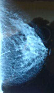 mamografinezamanvenesiklikta
